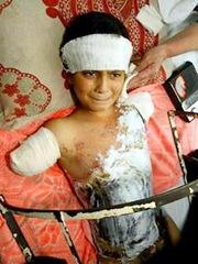 injured-iraqi-boy